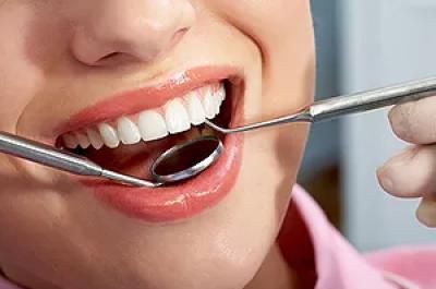 ODONTOLOGIJA JUMS, UAB - ypatingas pasiūlymas dantų protezavimui